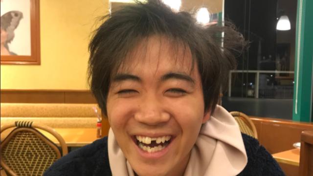 前歯が折れたゆうま