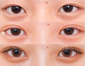 タナカガの目のビフォーアフター