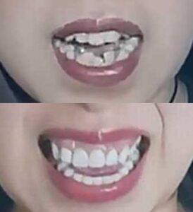 タナカガの歯のビフォーアフター